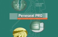 Tratamente pentru hidroizolatii terase cu sistemul Penetron