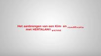 Kim- en randfixatie EPDM dakbedekking _ HERTALAN®